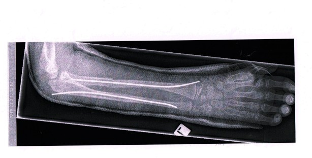 Xray of Troels' arm showing the steel inserts to stabilize the broken bones